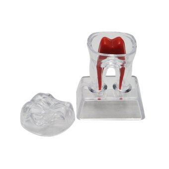 นิวฟันฟันฟันฐานคริสตัลพลาสติกแข็งกรามรุ่น