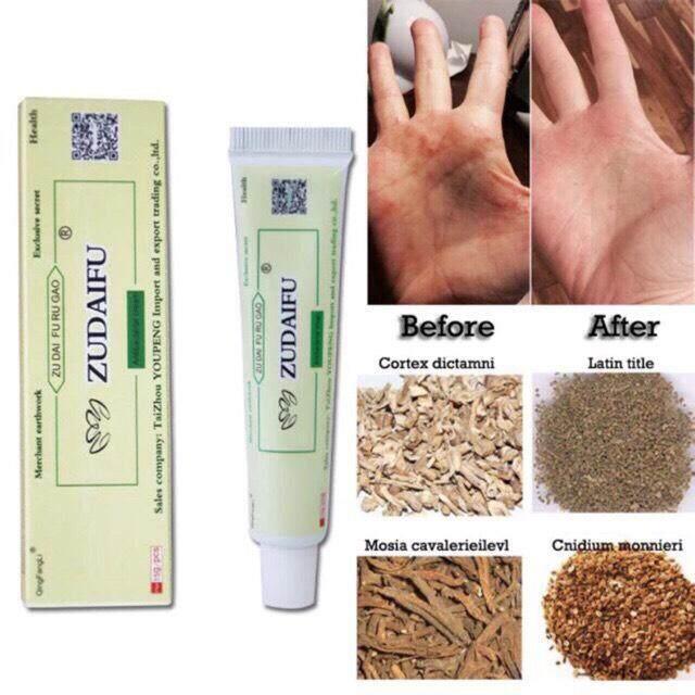 ครีมสมุนไพรจีนรักษาโรคผิวหนัง กลากเกลื้อน โรคสะเก็ดเงิน โรคนำ้กัดเท้า ต้านเชื้อแบคทีเรีย Body Psoriasis Pruritus Eczema Dermatitis Cream 15g Safety Natural Effects Suitable All Skin By Profusion9.