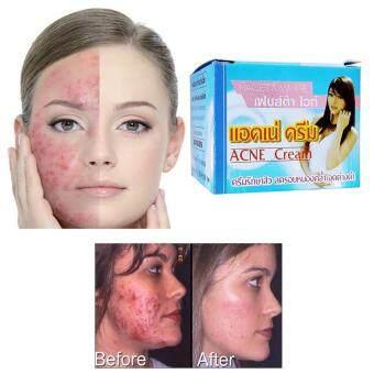 Faceta White Anti Acne Cream เฟซต้า ไวท์ แอคเน่ ครีมรักษาสิว ลดรอยหมองคล้ำ 5g. 2 ชิ้น