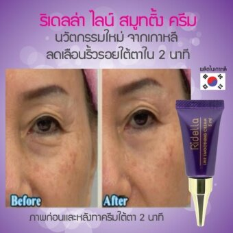 Ridella Line Smoothing Cream นวัตกรรมใหม่จากเกาหลี ลดเลือนริ้วรอย ถุงใต้ตา เรียบเนียนภายใน 2 นาที